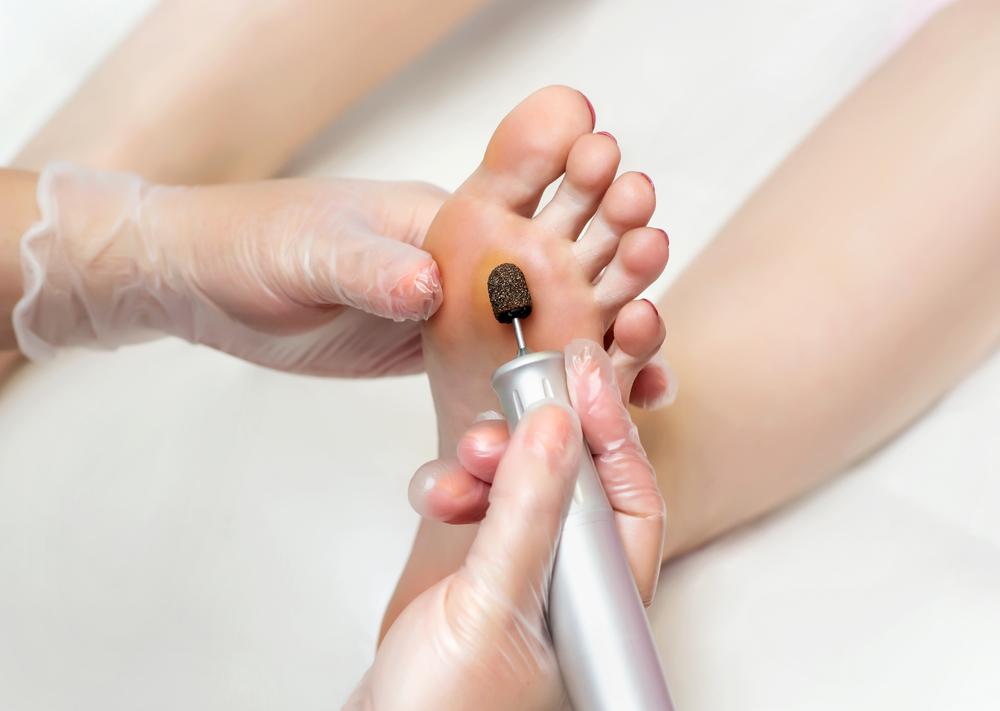 Behandlung Medizinische Fußpflege Klassisch